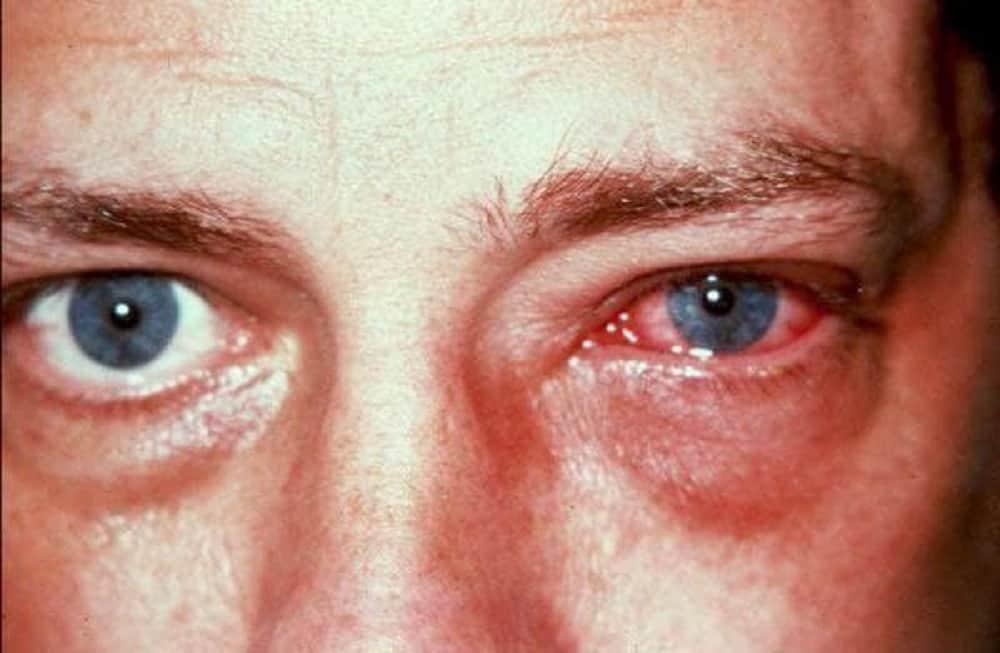 ¿Sabía usted que el coronavirus también puede afectar los ojos? 1