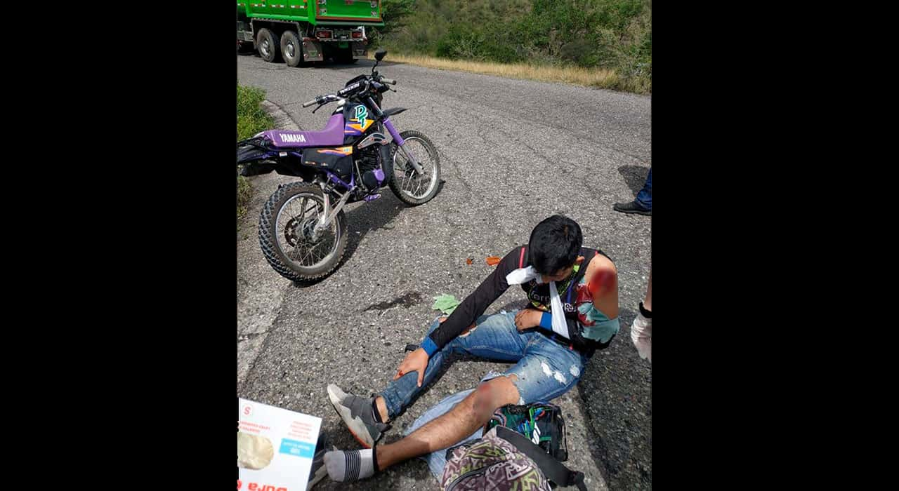 José Manuel Rincón, tiplista de la agrupación sufrió fracturas en su brazo. Fotografía Archivo particular.
